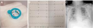 Cardiólogos-blog-Covid19-1