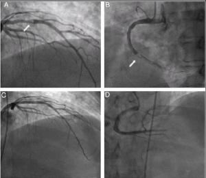 Cardiólogos-blog-Covid19